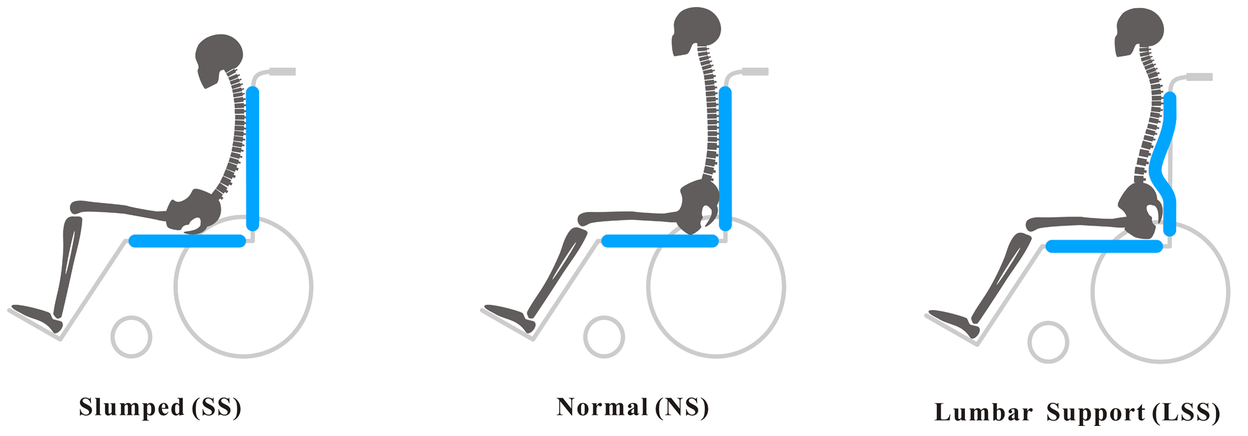 Wheelchair Positioning to Prevent Back Pain